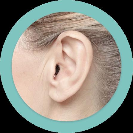 In-Dem-Ohr-Hörsystem